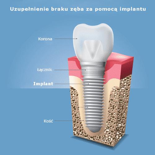 Czym jest implant stomatologiczny?