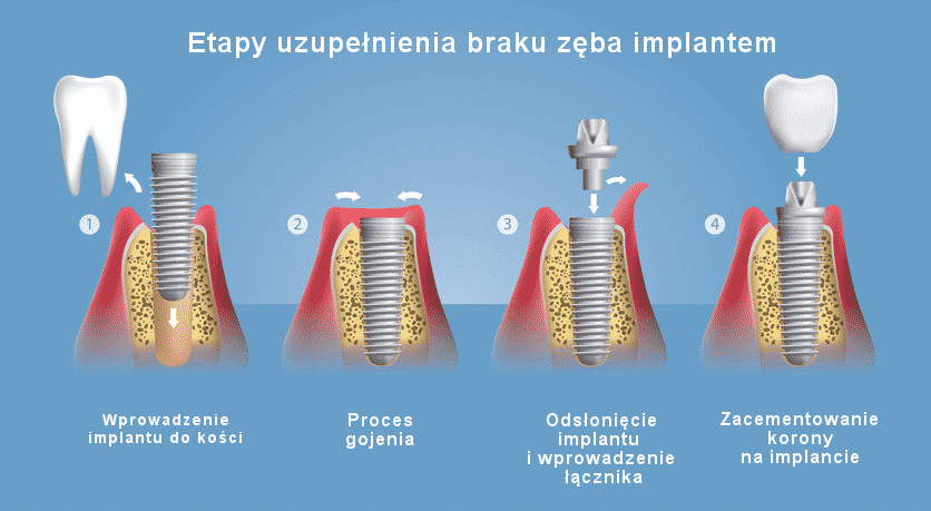 Etapy uzupełniania braku zęba implantem - jak wygląda zabieg implantacji?