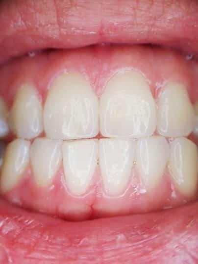 higienizacja zębów warszawa ochota